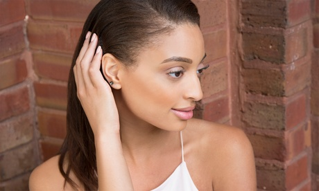 Three Mole or Skin Tag Removal Sessions at Elite Skin (91% Off)