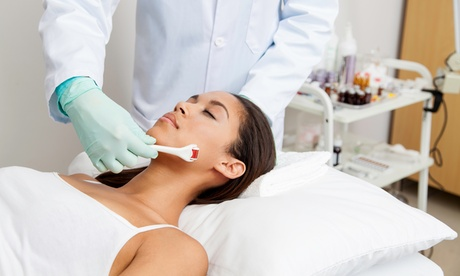 One Microneedling Session at The Aesthetics Lounge (10% Off)